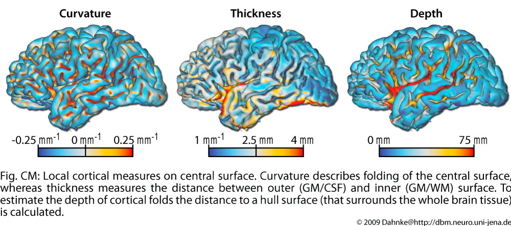 cortical_measures.en.jpg